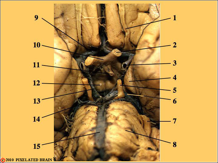 Ventral View of the Gross Brainstem