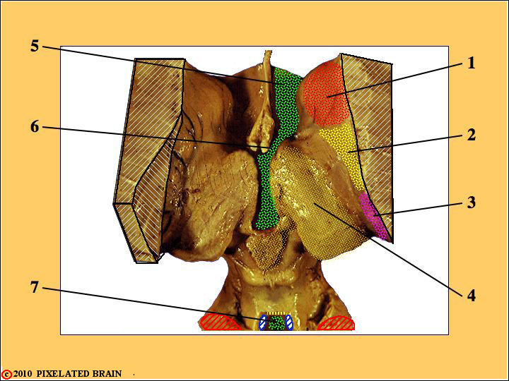 Dorsal view of the Gross Brainstem