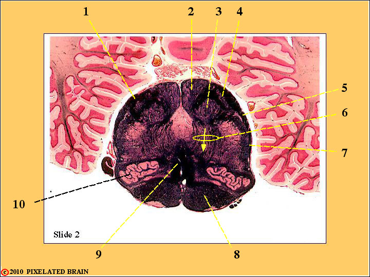 CrossSection through the Caudal Medulla